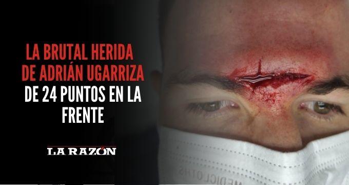 Adrián Ugarriza y su brutal herida de 24 puntos en la frente